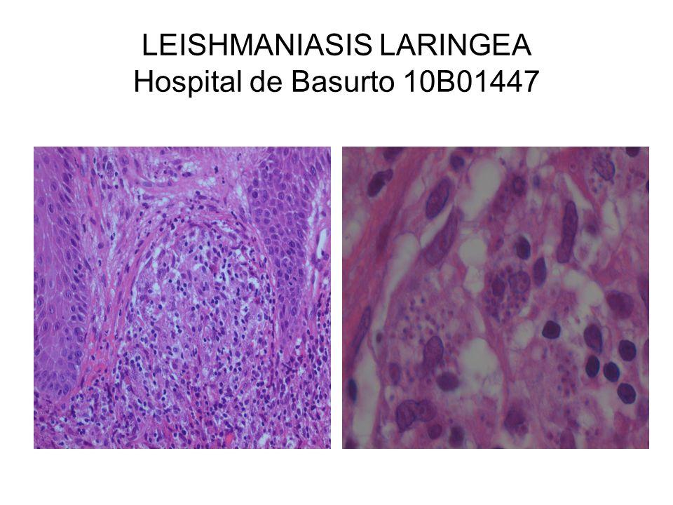 LEISHMANIASIS LARINGEA Hospital de Basurto 10B01447