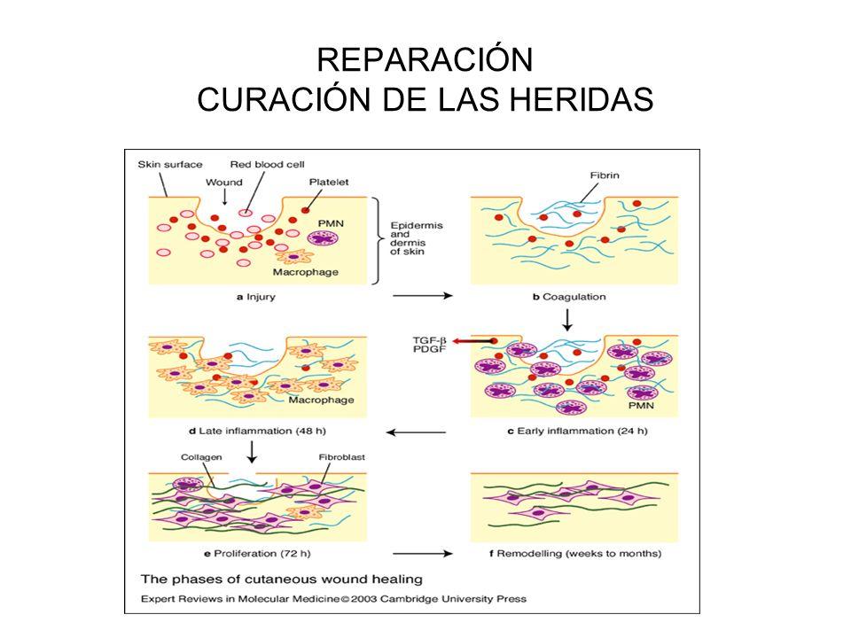 REPARACIÓN CURACIÓN DE LAS HERIDAS