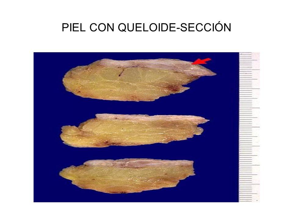 PIEL CON QUELOIDE-SECCIÓN