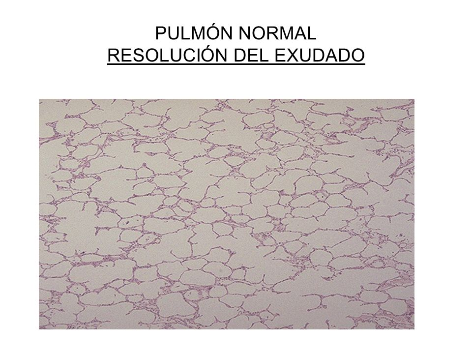 PULMÓN NORMAL RESOLUCIÓN DEL EXUDADO