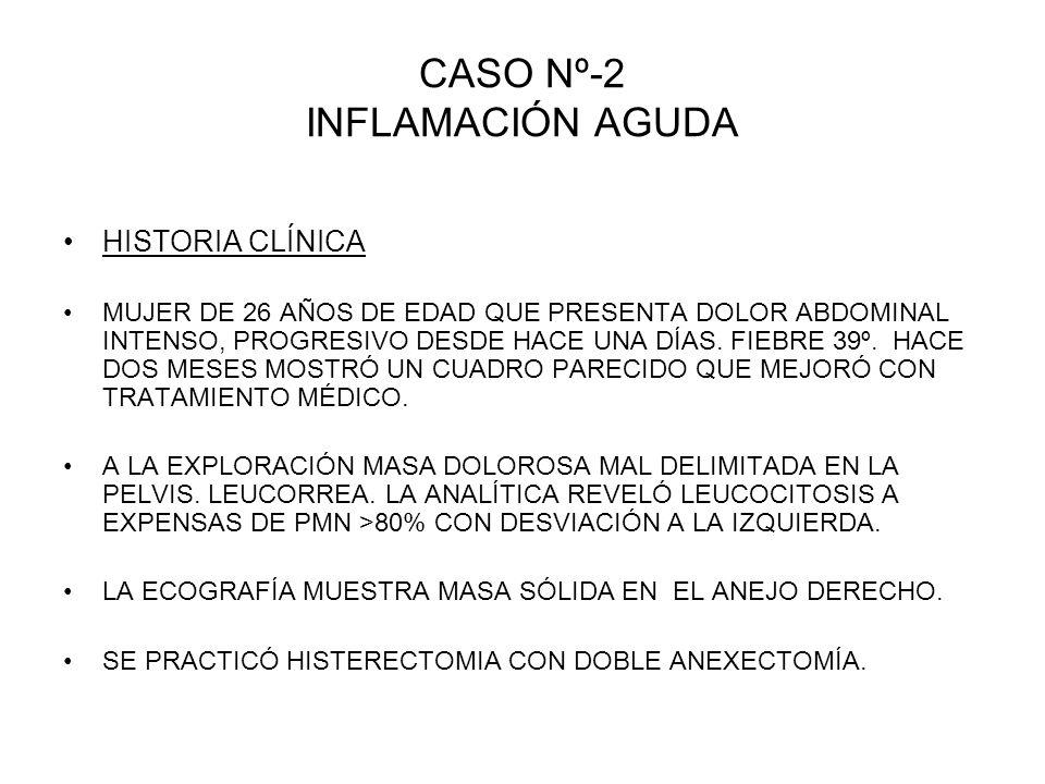 CASO Nº-2 INFLAMACIÓN AGUDA