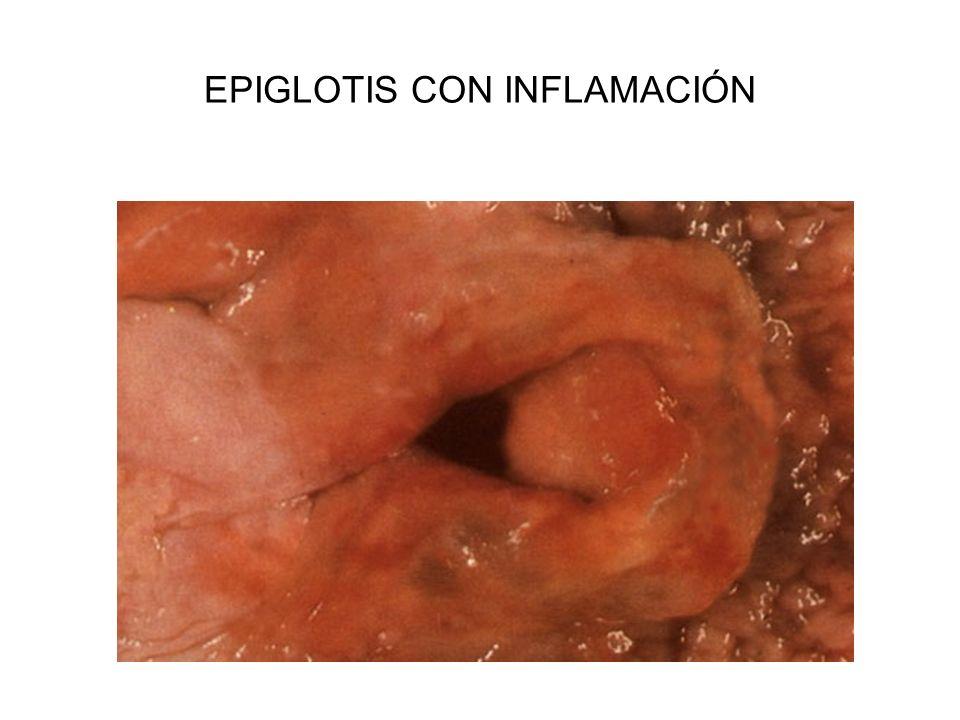 EPIGLOTIS CON INFLAMACIÓN