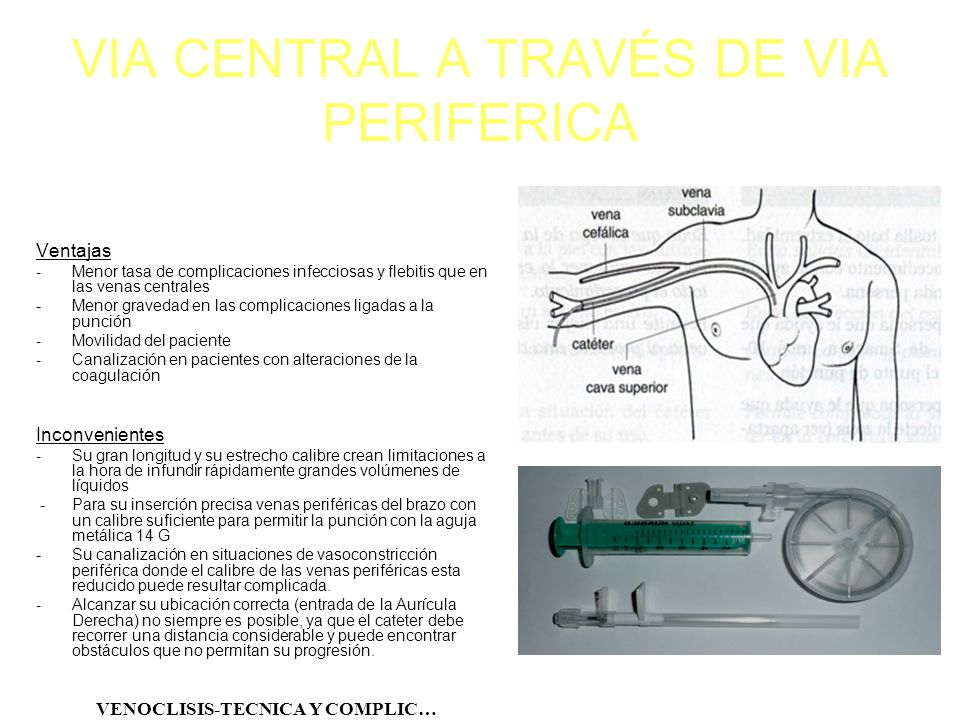 VIA CENTRAL A TRAVÉS DE VIA PERIFERICA