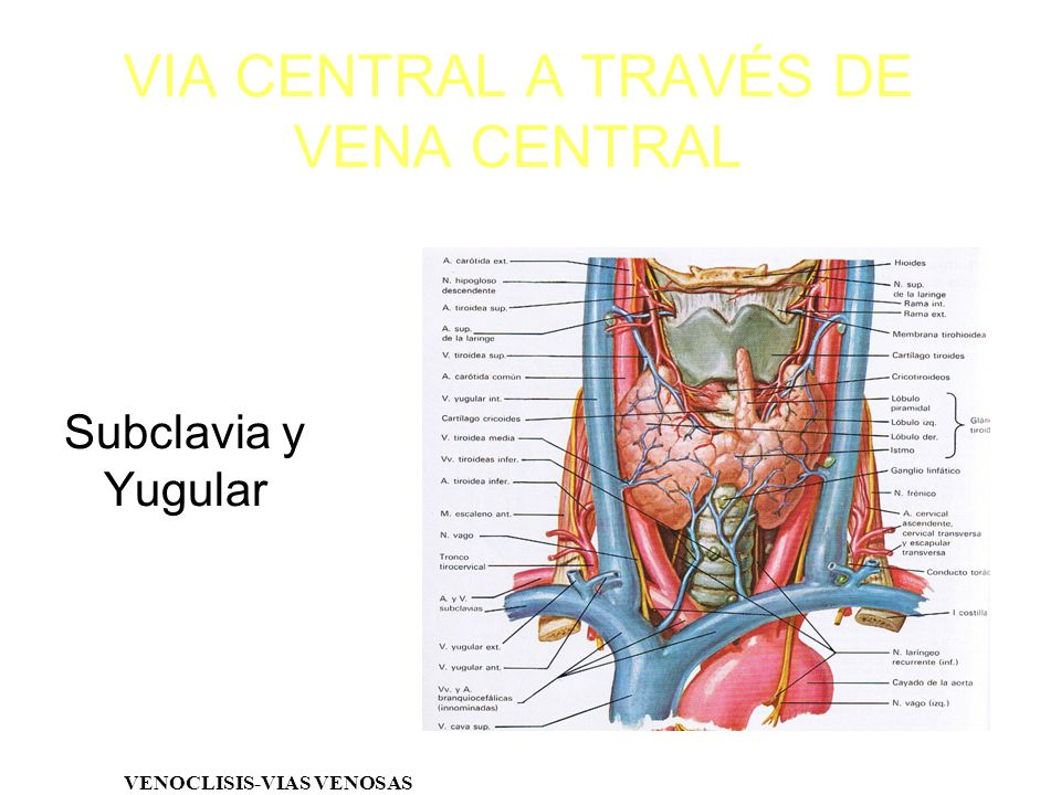 VIA CENTRAL A TRAVÉS DE VENA CENTRAL