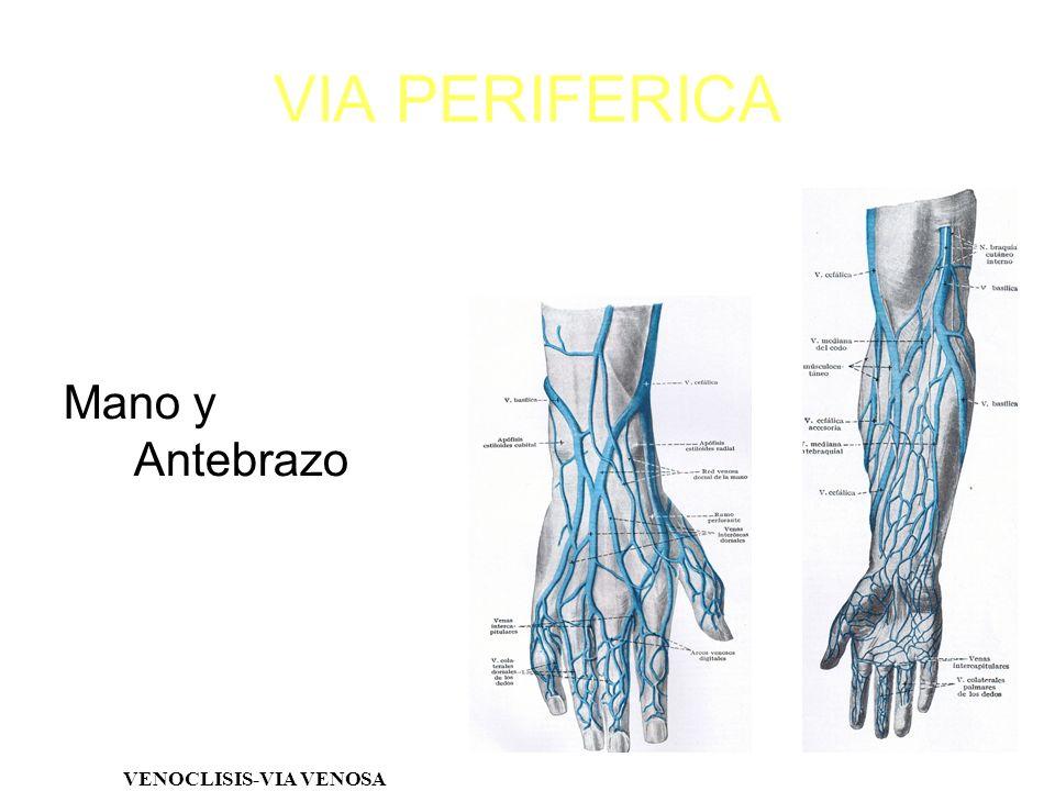 VIA PERIFERICA Mano y Antebrazo VENOCLISIS-VIA VENOSA