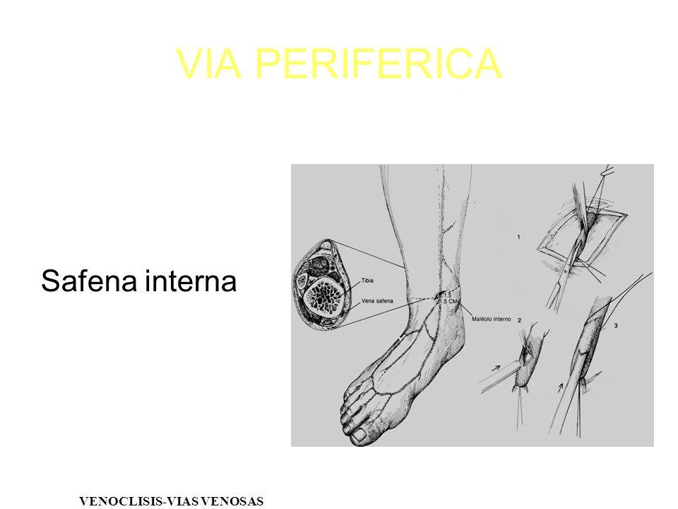VIA PERIFERICA Safena interna VENOCLISIS-VIAS VENOSAS