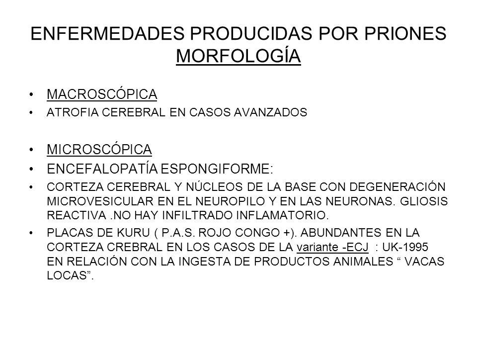 ENFERMEDADES PRODUCIDAS POR PRIONES MORFOLOGÍA