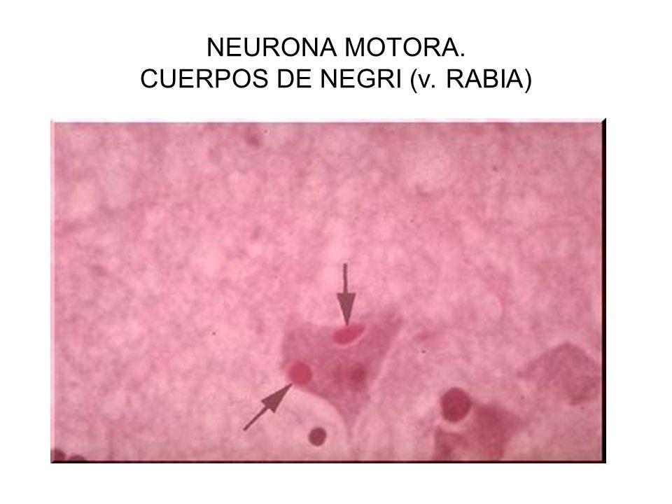 NEURONA MOTORA. CUERPOS DE NEGRI (v. RABIA)