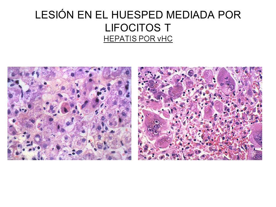 LESIÓN EN EL HUESPED MEDIADA POR LIFOCITOS T HEPATIS POR vHC