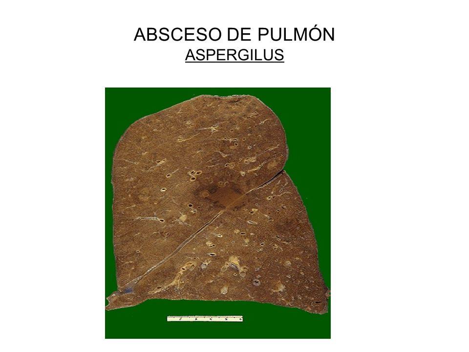ABSCESO DE PULMÓN ASPERGILUS
