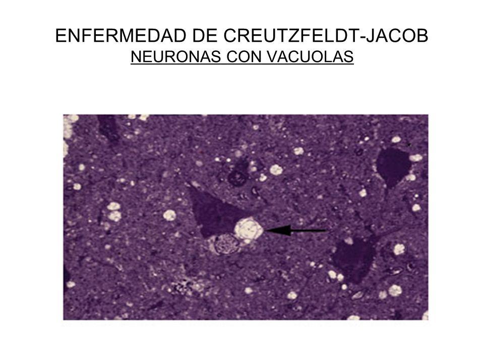 ENFERMEDAD DE CREUTZFELDT-JACOB NEURONAS CON VACUOLAS