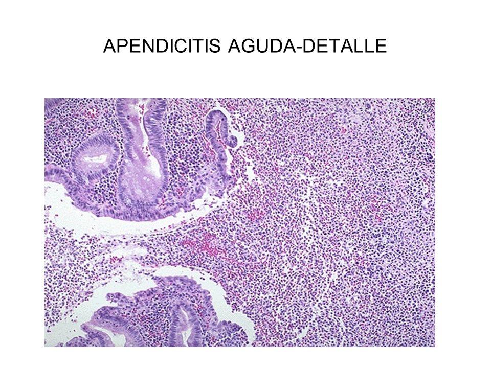 APENDICITIS AGUDA-DETALLE