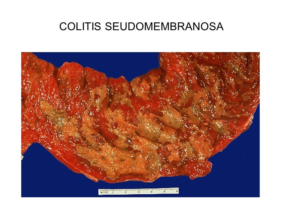 COLITIS SEUDOMEMBRANOSA