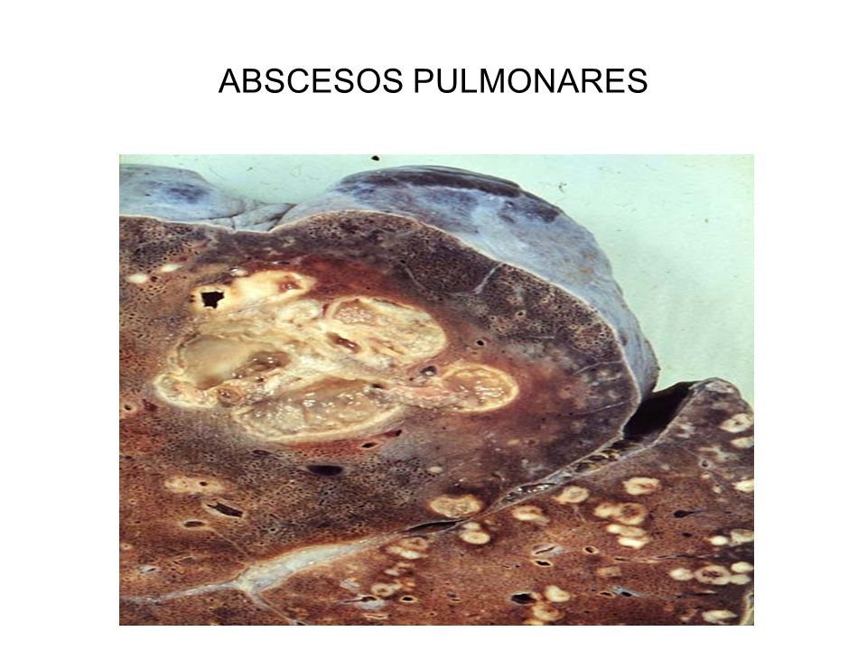 ABSCESOS PULMONARES