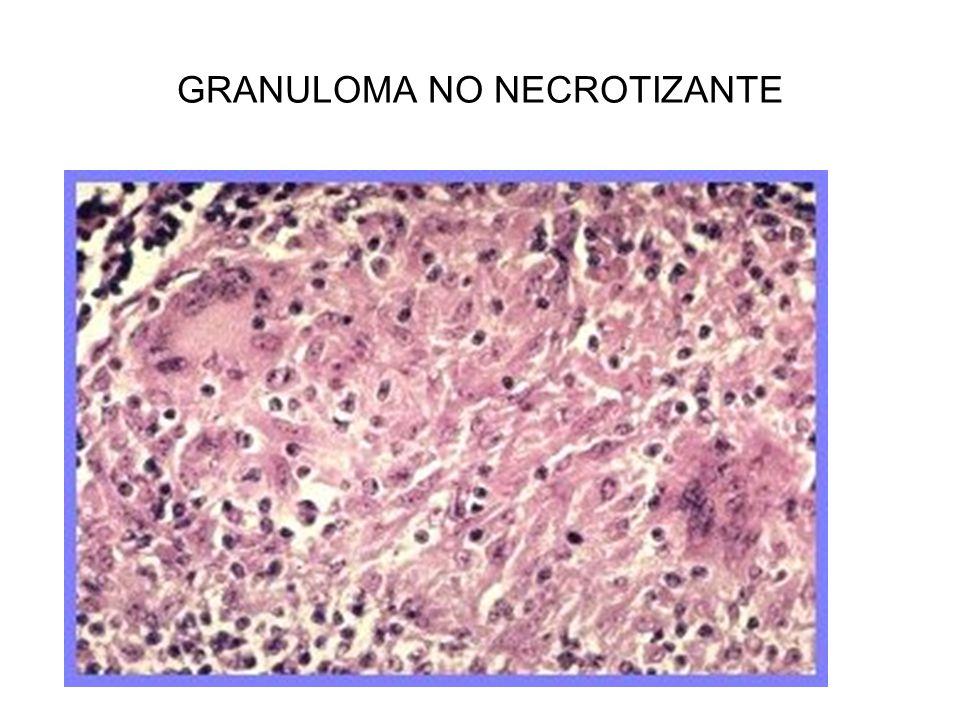 GRANULOMA NO NECROTIZANTE