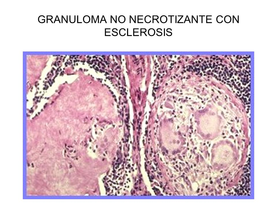 GRANULOMA NO NECROTIZANTE CON ESCLEROSIS