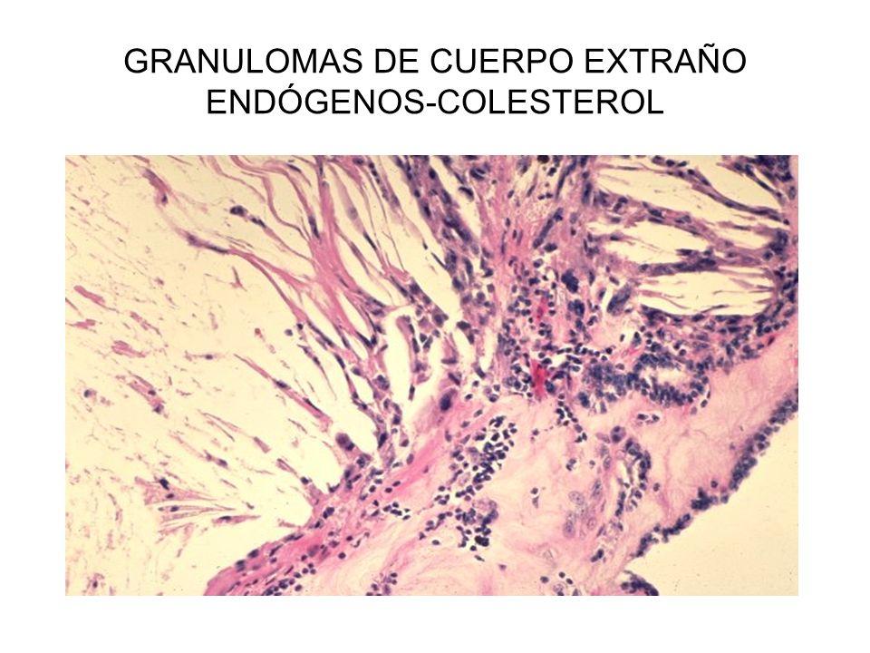 GRANULOMAS DE CUERPO EXTRAÑO ENDÓGENOS-COLESTEROL