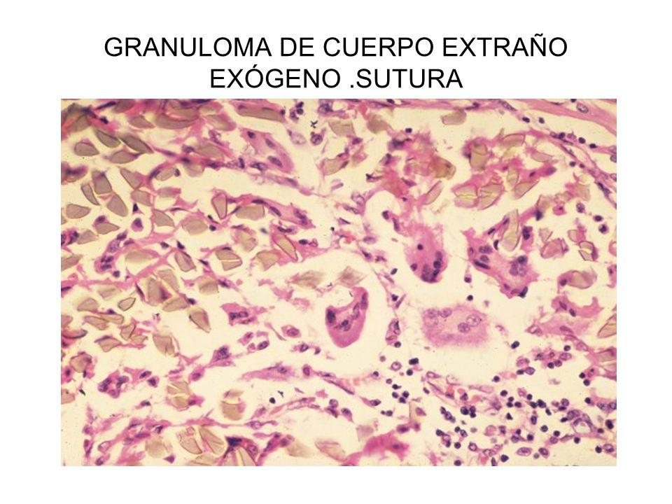 GRANULOMA DE CUERPO EXTRAÑO EXÓGENO .SUTURA
