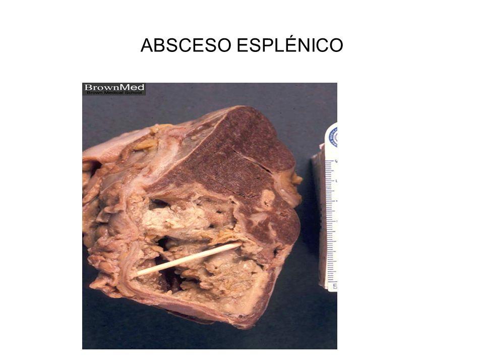 ABSCESO ESPLÉNICO