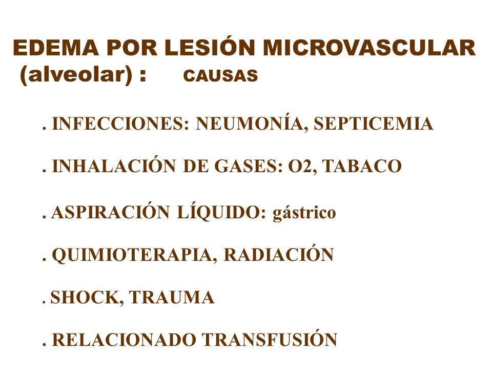 EDEMA POR LESIÓN MICROVASCULAR (alveolar) : CAUSAS