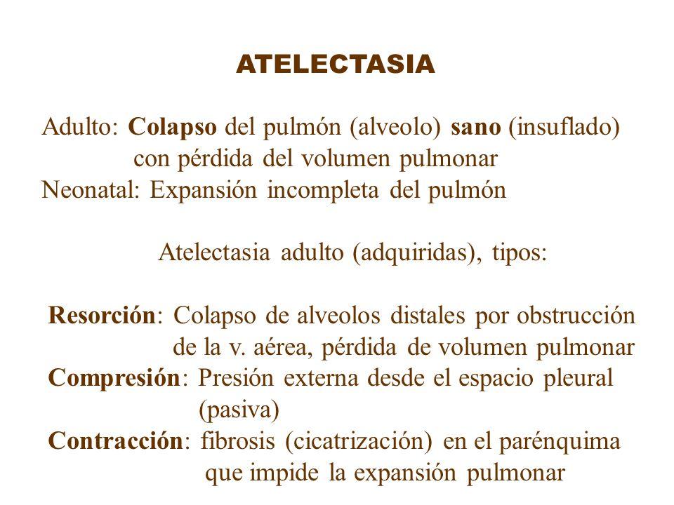 ATELECTASIA Adulto: Colapso del pulmón (alveolo) sano (insuflado) con pérdida del volumen pulmonar.