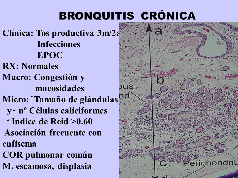 BRONQUITIS CRÓNICA Clínica: Tos productiva 3m/2a Infecciones EPOC