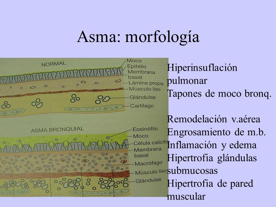 Asma: morfología Hiperinsuflación pulmonar Tapones de moco bronq.
