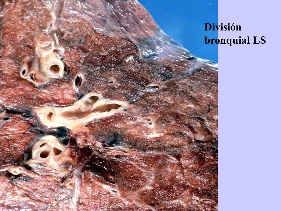 División bronquial LS