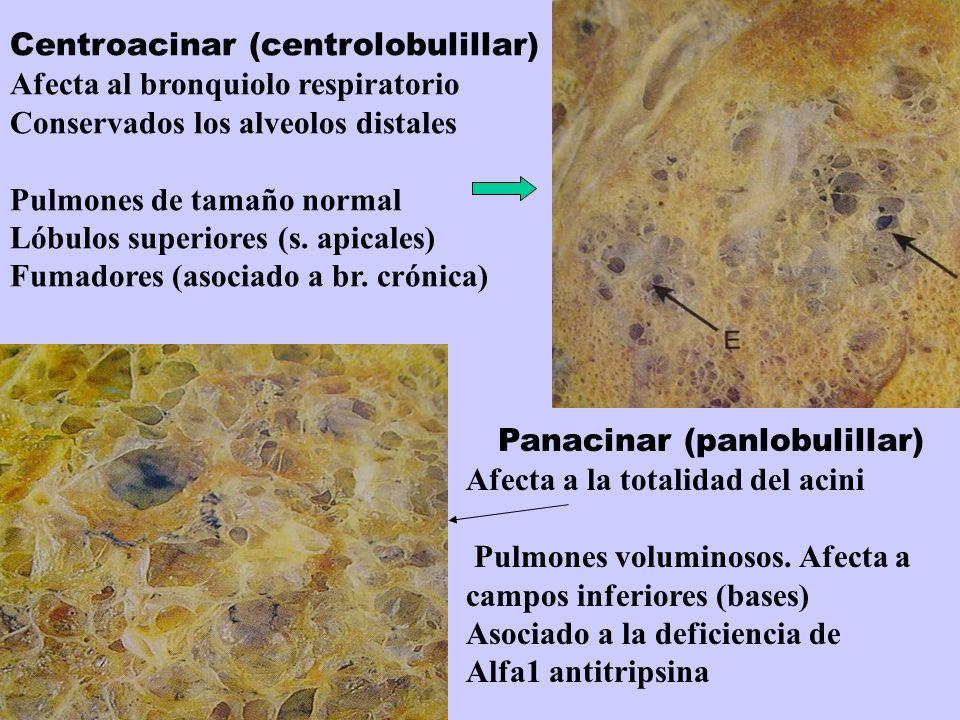 Centroacinar (centrolobulillar) Afecta al bronquiolo respiratorio