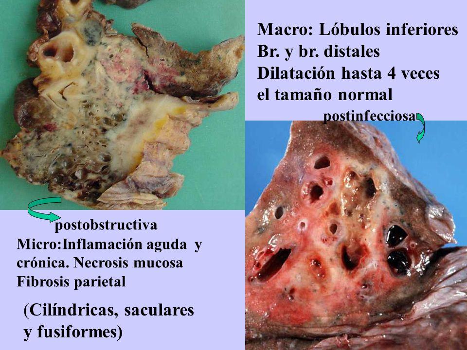 Macro: Lóbulos inferiores Br. y br. distales Dilatación hasta 4 veces