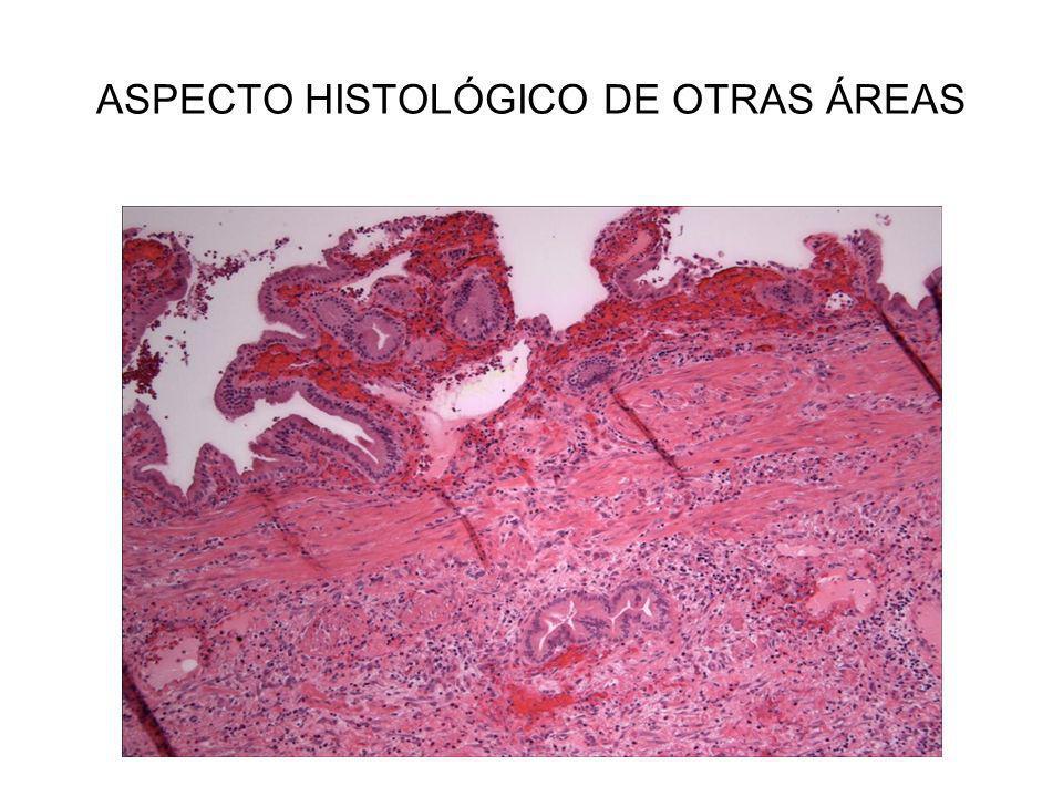 ASPECTO HISTOLÓGICO DE OTRAS ÁREAS