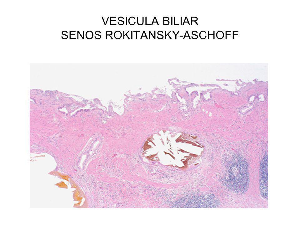 VESICULA BILIAR SENOS ROKITANSKY-ASCHOFF