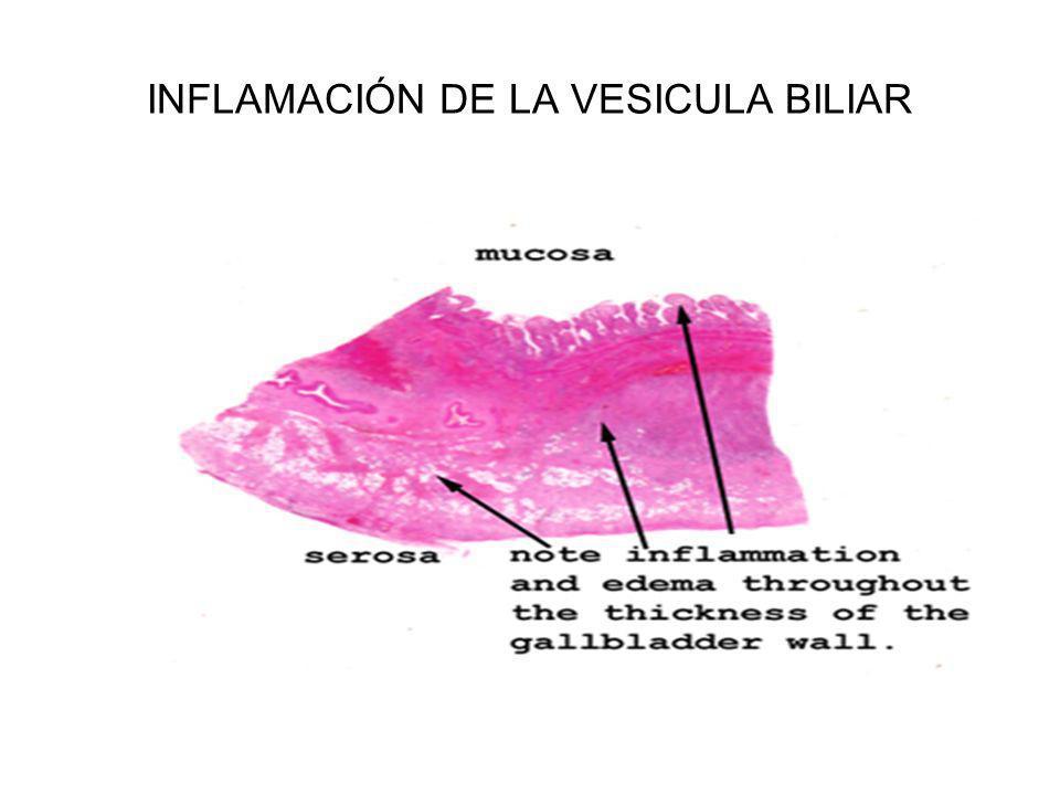 INFLAMACIÓN DE LA VESICULA BILIAR