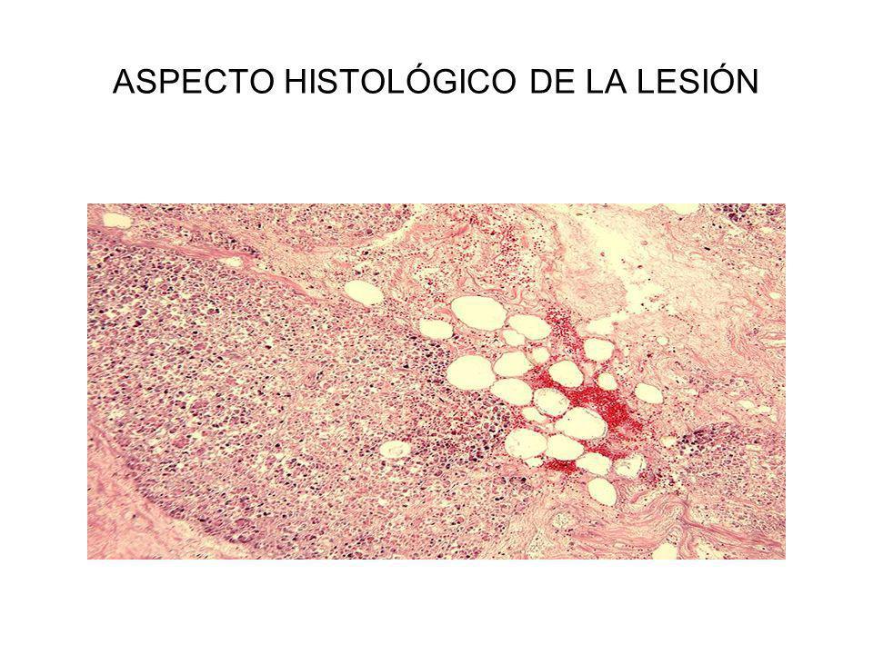 ASPECTO HISTOLÓGICO DE LA LESIÓN