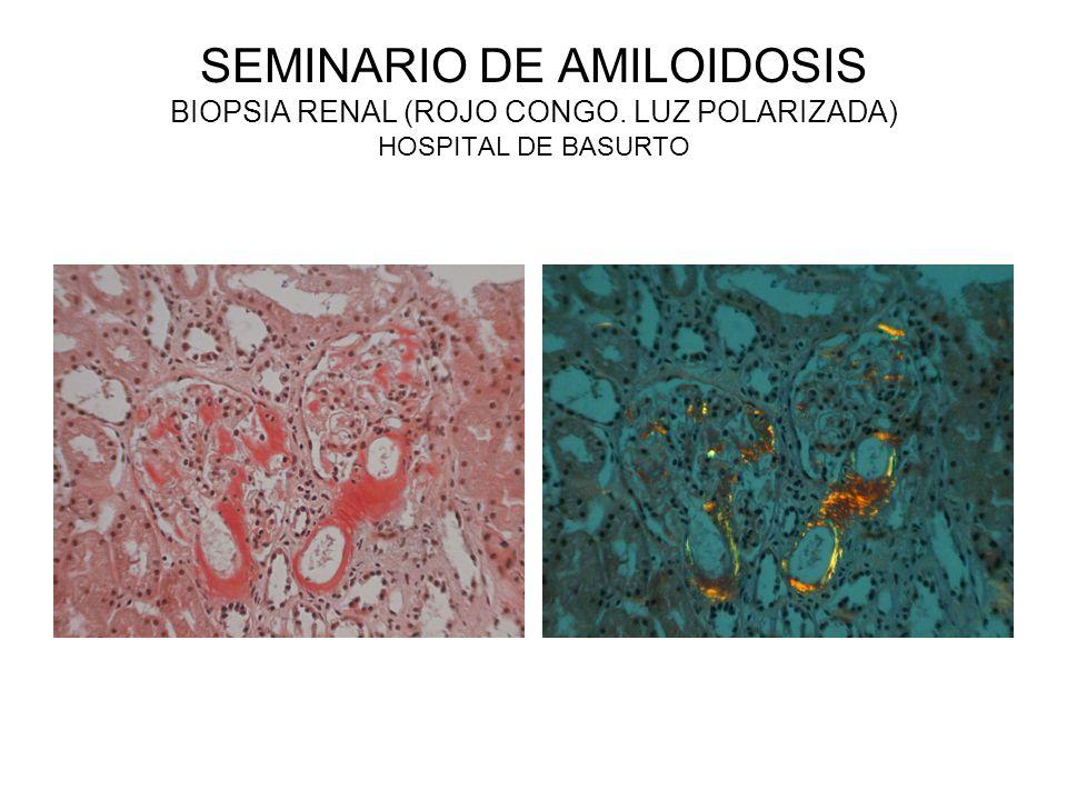 SEMINARIO DE AMILOIDOSIS BIOPSIA RENAL (ROJO CONGO