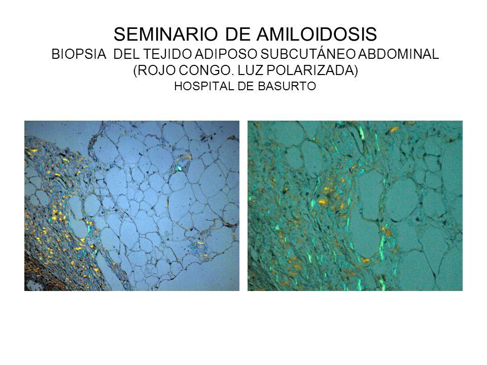SEMINARIO DE AMILOIDOSIS BIOPSIA DEL TEJIDO ADIPOSO SUBCUTÁNEO ABDOMINAL (ROJO CONGO.