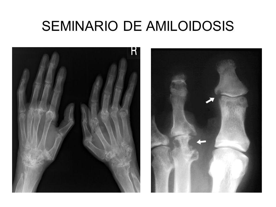 SEMINARIO DE AMILOIDOSIS