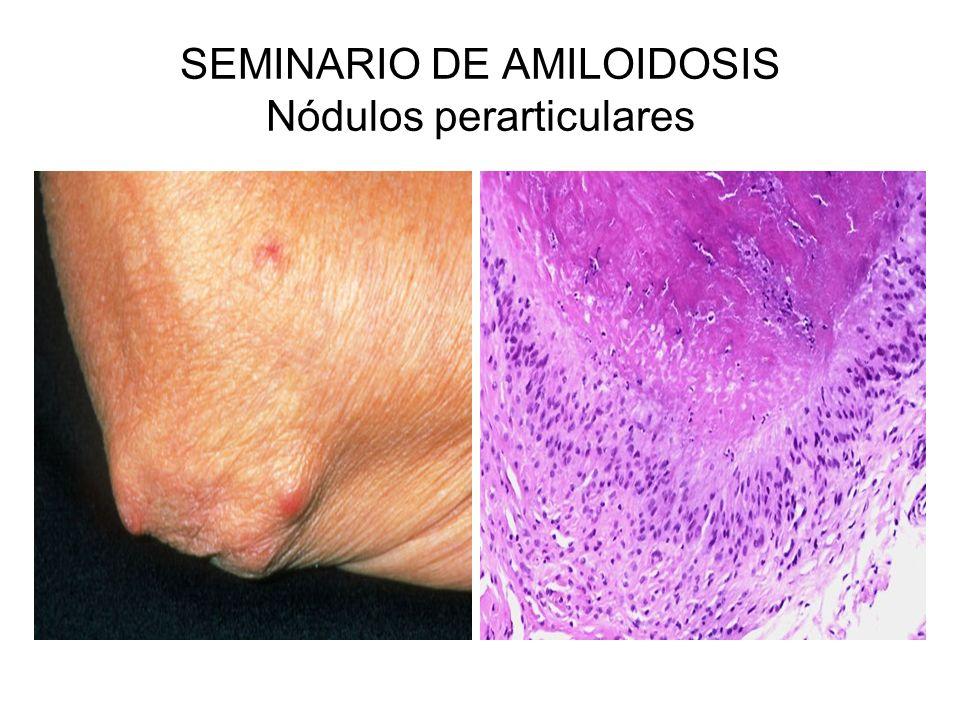 SEMINARIO DE AMILOIDOSIS Nódulos perarticulares