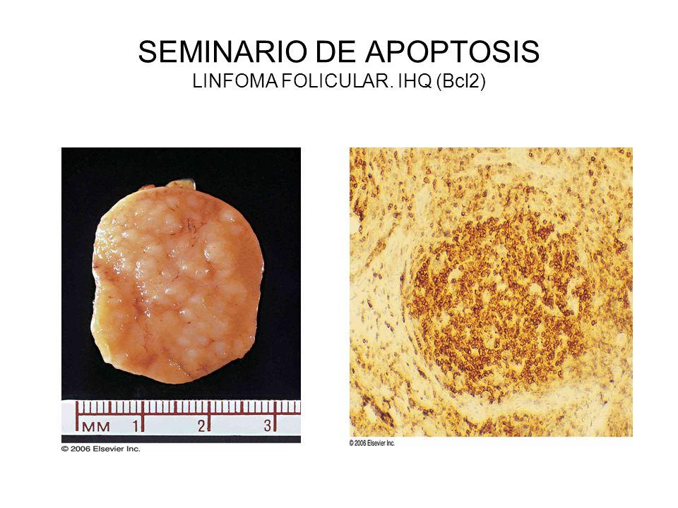 SEMINARIO DE APOPTOSIS LINFOMA FOLICULAR. IHQ (Bcl2)