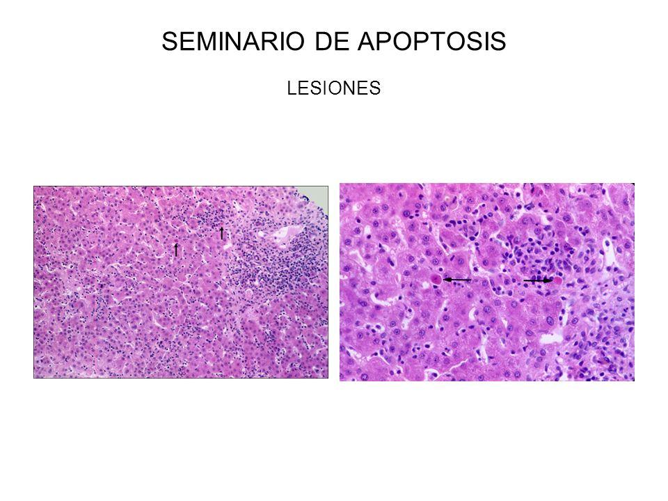 SEMINARIO DE APOPTOSIS LESIONES