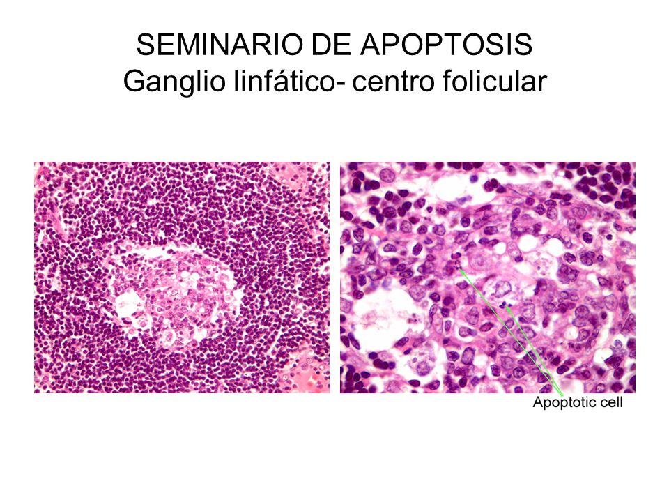 SEMINARIO DE APOPTOSIS Ganglio linfático- centro folicular