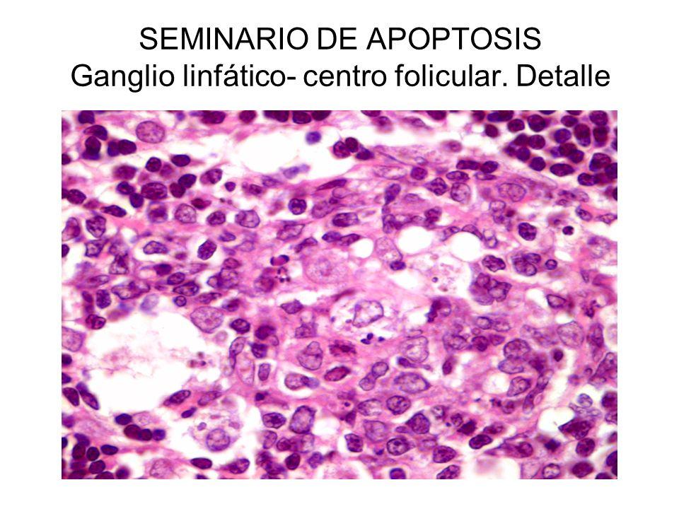 SEMINARIO DE APOPTOSIS Ganglio linfático- centro folicular. Detalle
