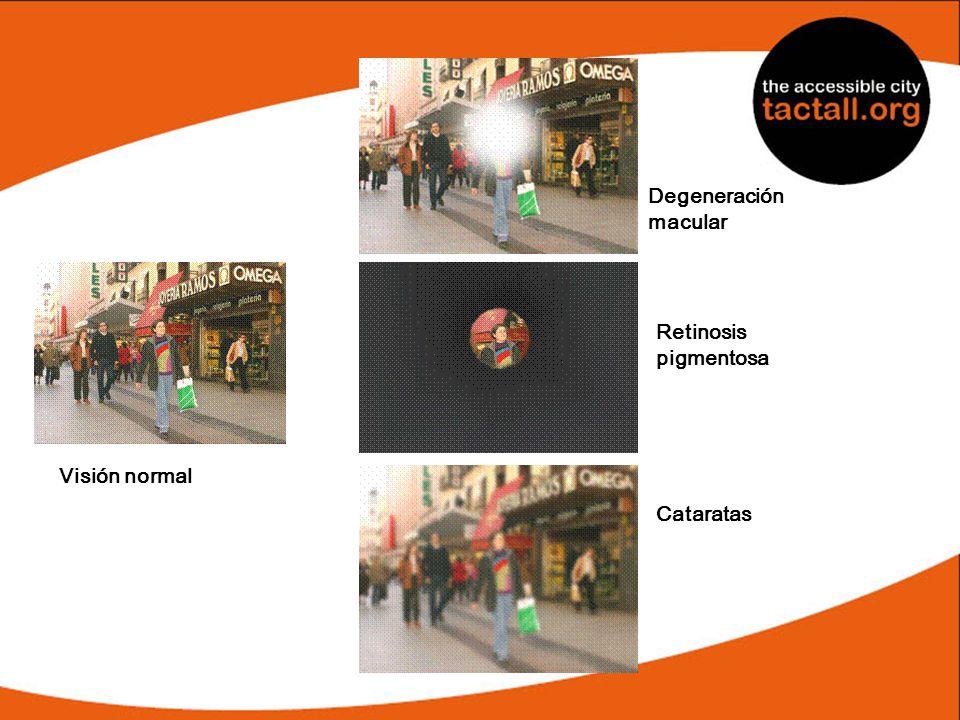 Degeneración macular Retinosis pigmentosa Visión normal Cataratas