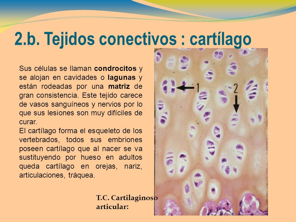 2.b. Tejidos conectivos : cartílago
