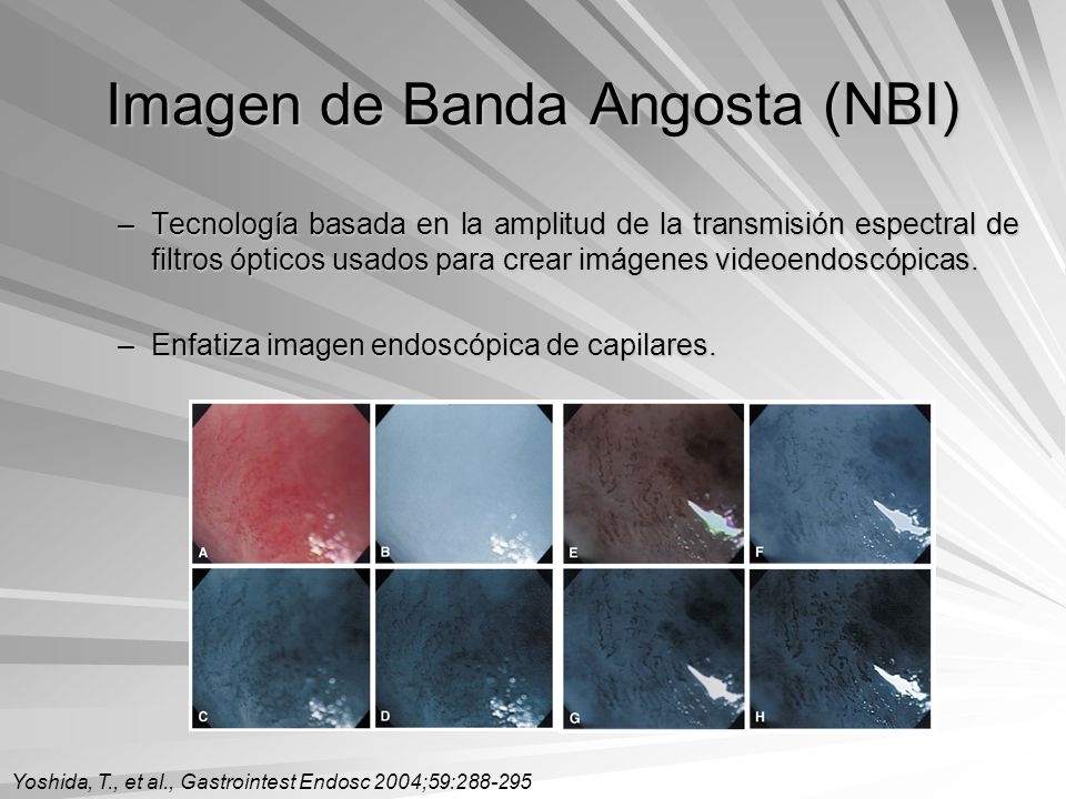 Imagen de Banda Angosta (NBI)