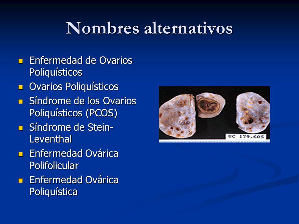 Nombres alternativos Enfermedad de Ovarios Poliquísticos