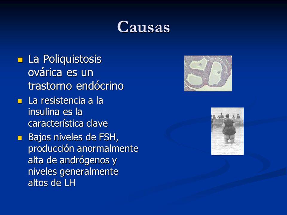 Causas La Poliquistosis ovárica es un trastorno endócrino