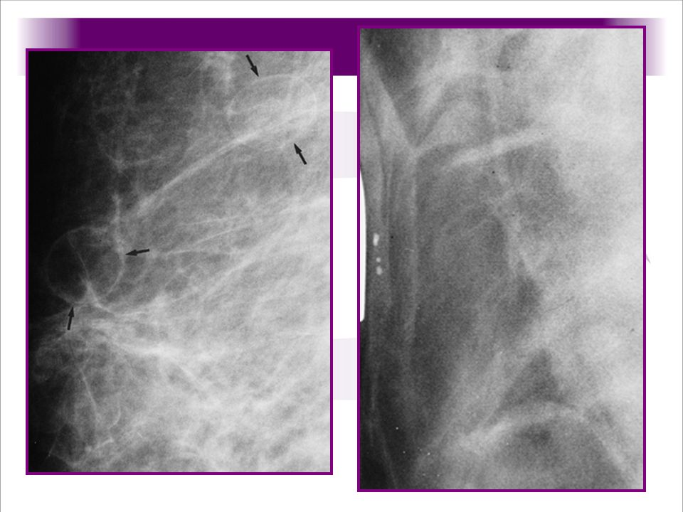 Quiste, masas radiolucidas con capsula indicadas por las flechas indican quisstes con aceite en paciente con trauma en mama