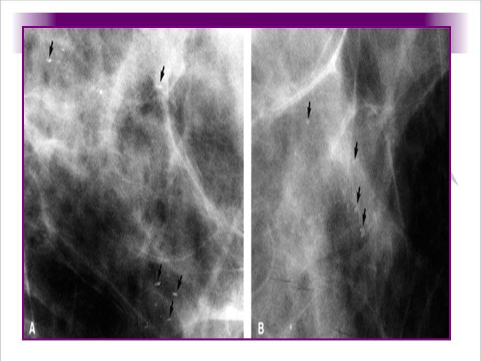 Calcificaciones de leche en quistes mamarios, en la a magnificacion en proyeccion lateral a 90 grados que muestra multiples calcificaciones señaladas con las flechas