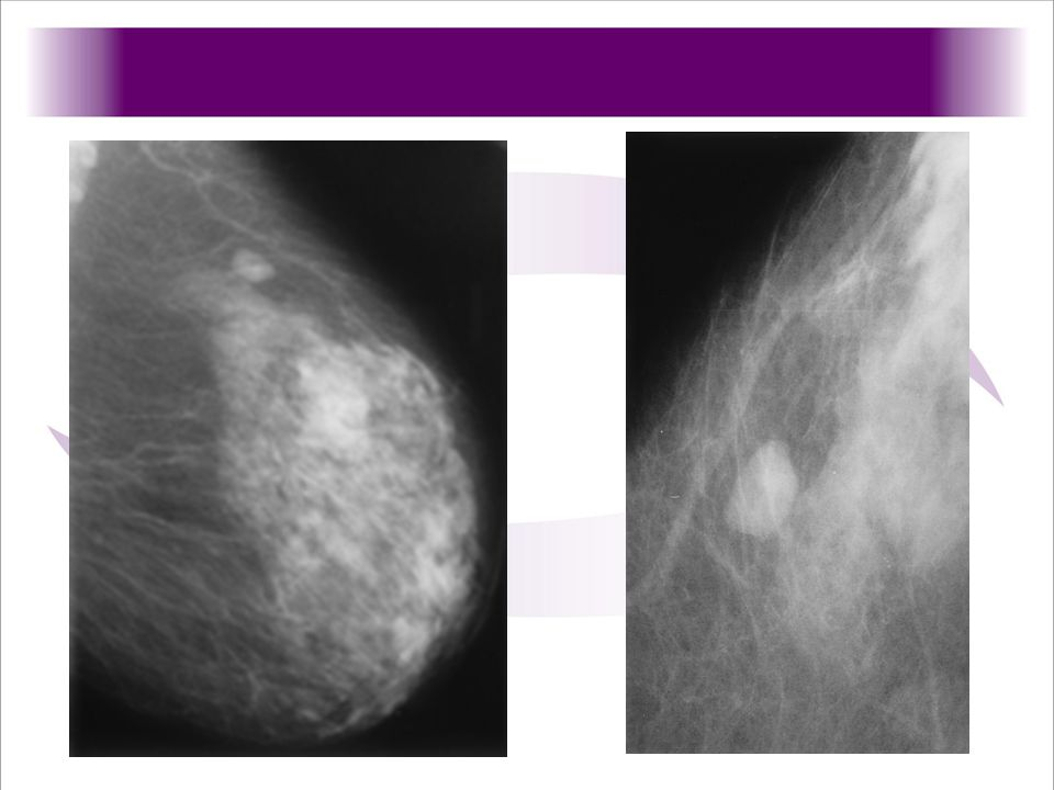 1.-(1a) Mediolateral oblique mammogram of the left breast shows a lobulated, circumscribed mass